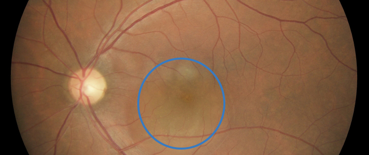 Photo of the back of an eye with central serous chorioretinopathy. A circle shows area of fluid accumulation.
