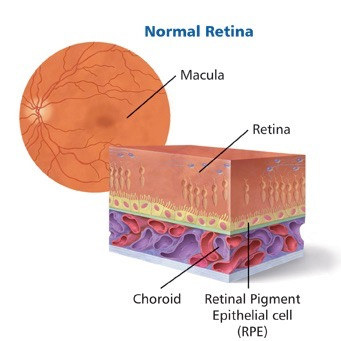 Diagram of normal retina with a cross section showing the retina, the choroid and retinal pigment epithelial cell layer