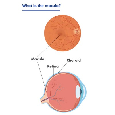 Image is a diagram of the macula, showing its placement at the back of the eye. The diagram also points out the location of the retina and choroid in the eye.