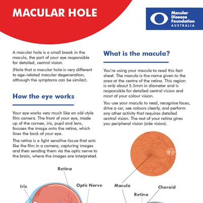 Macular hole fact sheet