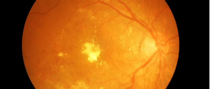 Image of the back of an eye with diabetic retinopathy.