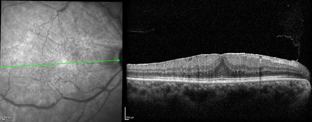OCT image of epiretinal membrane (macular pucker)