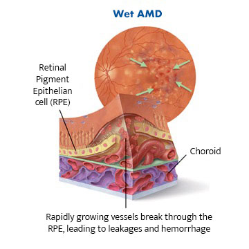 Image shows diagram of cross section of retina with wet AMD showing rapidly growing vessels breaking through the RPE, leading to leakages and haemorrhage