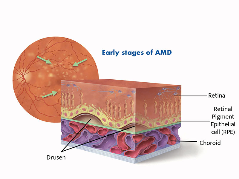 Diagram of cross section of retina showing drusen developing in early age-related macular degeneration