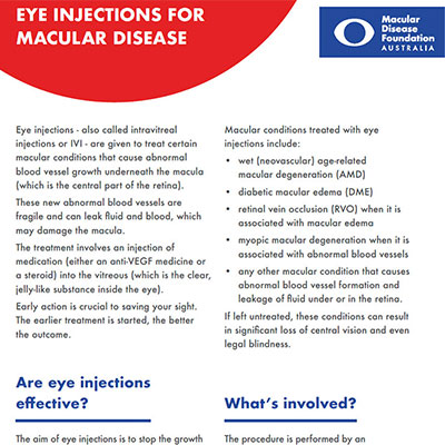 Eye injections for macular disease fact sheet