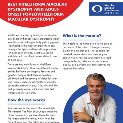 Vitelliform macular dystrophy fact sheet