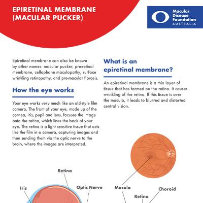 Epiretinal membrane fact sheet