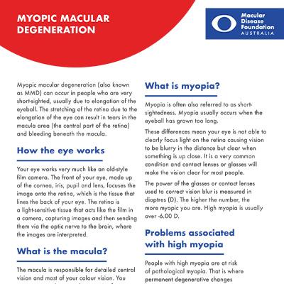 Myopic macular degeneration fact sheet