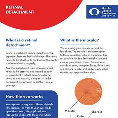 Retinal detachment fact sheet