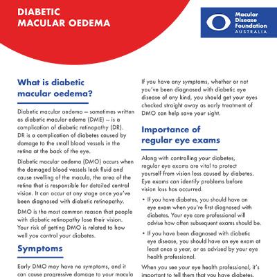 Diabetic macular oedema fact sheet
